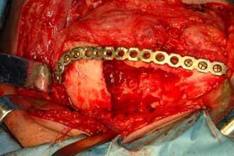 Images of 歯原性腫瘍