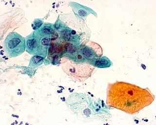 一般的に、細胞検査ではパパニコロウ染色(左図)という染色方法で細胞の形態を観察